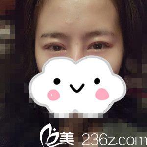 想变美很容易,看我在哈尔滨禾力康做双眼皮一周的恢复过程