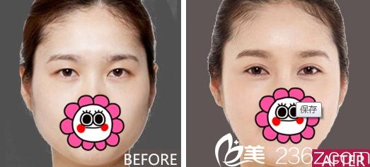 重庆新铜雀台整形双眼皮案例