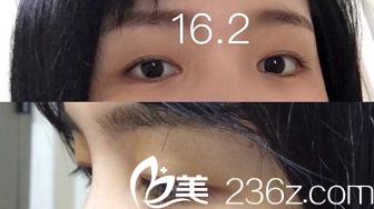 上海第九人民医院整形外科周一雄术前照片1