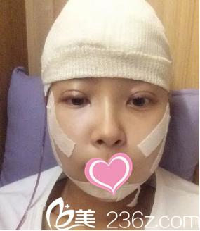 在上海华美找李志海做了下颌角截骨手术大概是花光了我所有勇气