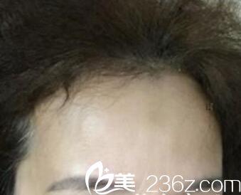 2017年3月在杭州悦可陈彩媛医生这儿做注射除皱,花3980元换回青春