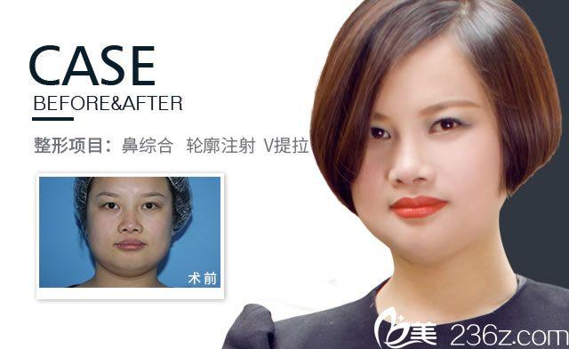 鼻综合及面部V提拉真人案例