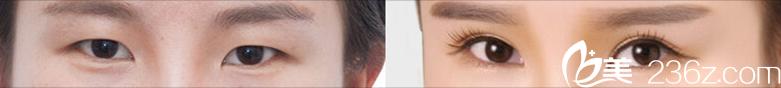 天津伊美尔医疗整形美容专科医院双眼皮案例