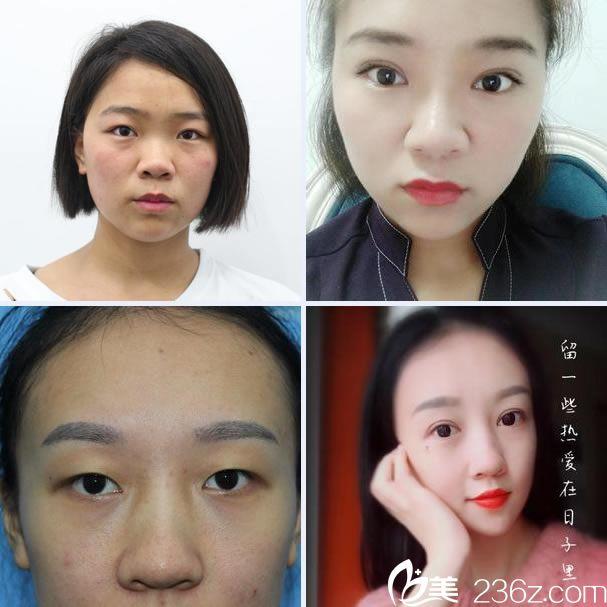 杭州林忠泵医生双眼皮综合整形案例