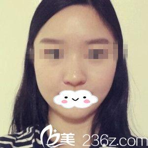 分享我在韩国车李郑整形去颊脂垫瘦脸三个月秒变女神的过程