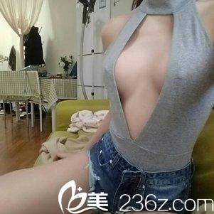 哈哈!北京协和整形白明给偶做哒280cc水滴假体隆胸巨仙!