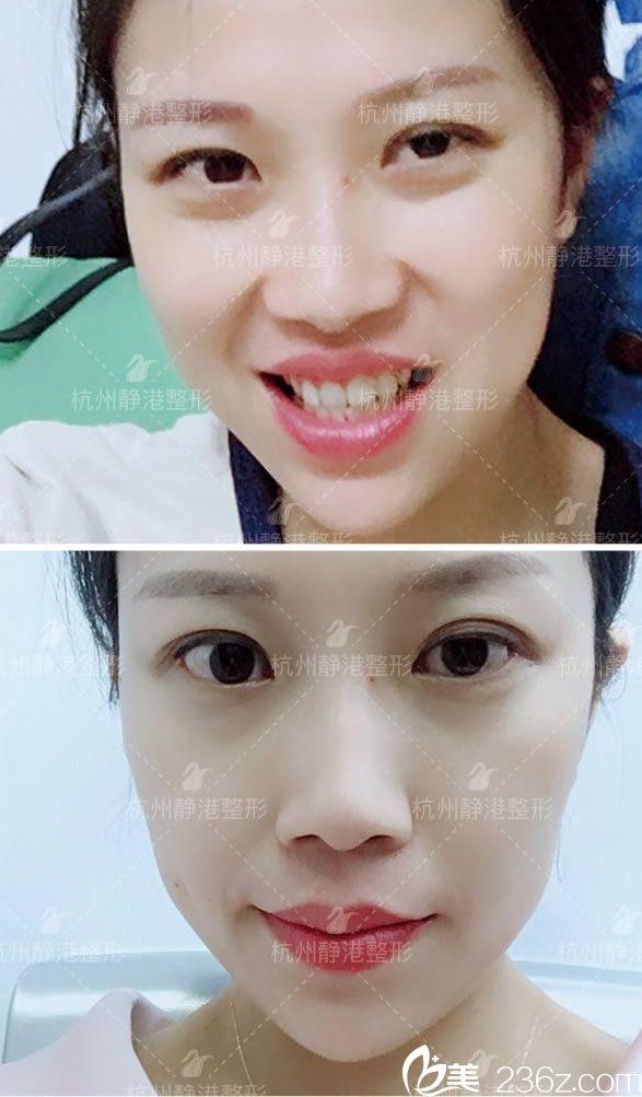 """10月17日在杭州静港找林忠泵做了5V面部线雕提升,原本我也有美人""""尖"""""""