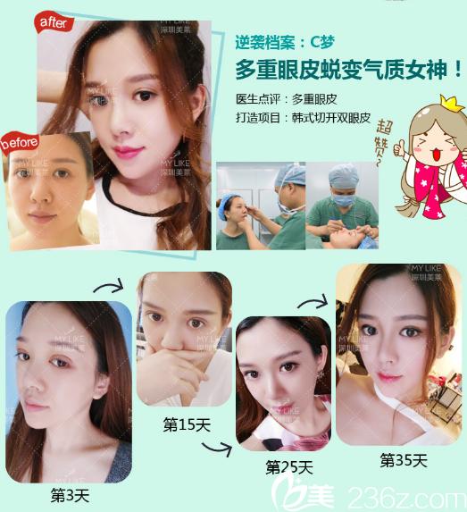 深圳美莱陈磊双眼皮案例术后恢复过程图