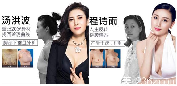 深圳美莱整形医院梁志为隆胸案例对比图