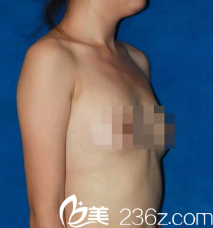 鼓起勇气找北京丽都整形医院高超医生做了285cc的假体隆胸