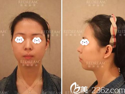 上海薇琳医美顾陆健医生怎么样?真实的鼻综合隆鼻案例让你心服口服