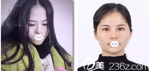 分享一个找上海时光何晋龙做完下颌角磨骨妹子术后一年恢复效果图