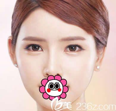 赤峰康华刘星赫隆鼻+瘦脸针三个月后 我也拥有了V字脸