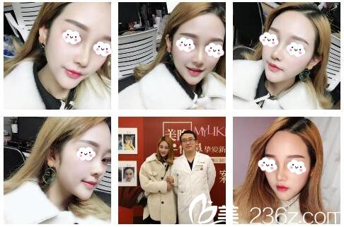 说说我找北京美莱宫风勇医生做鼻综合隆鼻手术11天的亲身经历