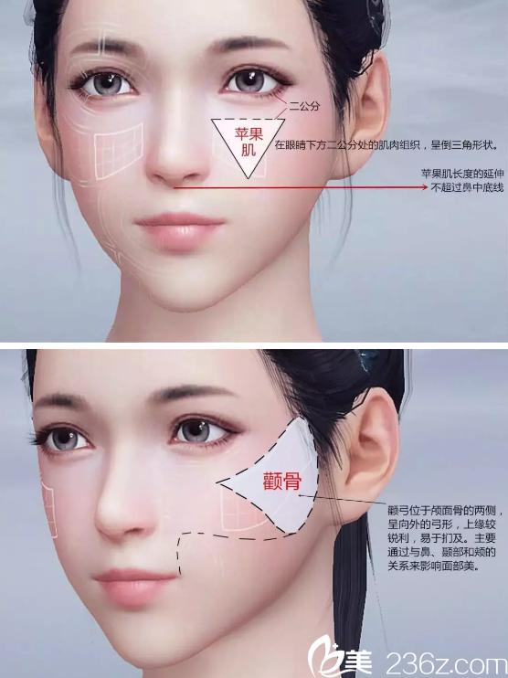 怎么区分苹果肌和高颧骨? 杭州时光带着真实案例来为你揭晓答案