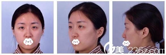 对比N家医院后选择北京304医院吴焱秋医生为我做了双眼皮手术
