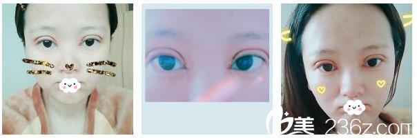 男朋友夸我找北京美莱整形医院叶宇主任做的双眼皮太漂亮了