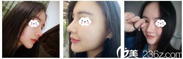 杭州美莱谁做隆鼻好?看了李波主任为我做的假体隆鼻案例效果图就知道