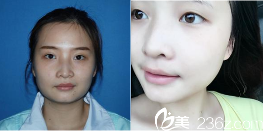 成都玉之光医疗美容门诊部刘中国术前照片1