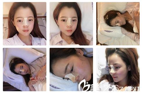 孙明磊医生隆鼻术后第一天