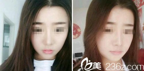 我在长春艾尔丽找赵广文花18900元做假体隆鼻手术过程