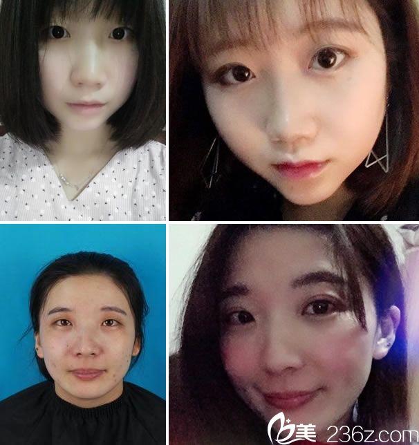 宁波雅韩刘成林全切双眼皮案例
