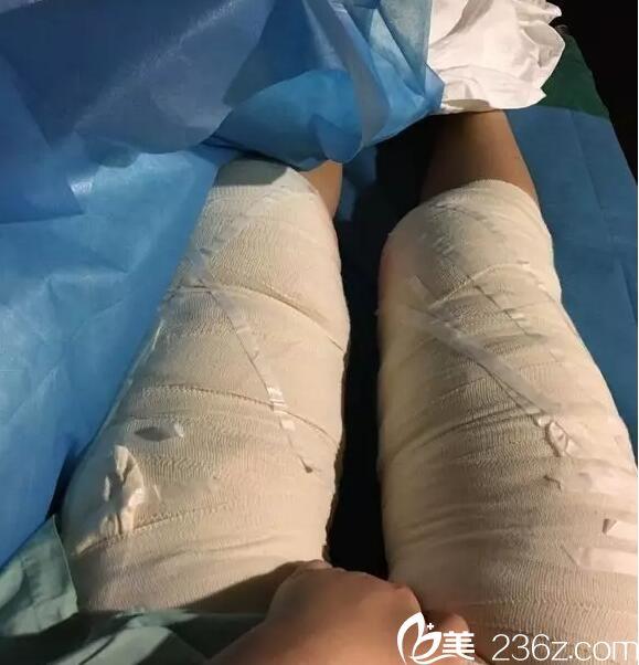 上海第九人民医院整形美容科抽脂真人案例