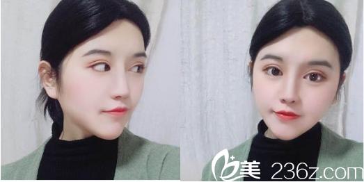 国庆节去武汉洪山爱美汇医院找瞿敏医生做了假体隆鼻