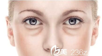 上海第九人民医院整形外科祛眼袋