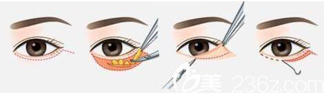 上海第九人民医院整形美容外科内路法祛眼袋