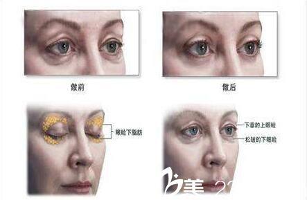 上海第九人民医院整形外科激光祛眼袋