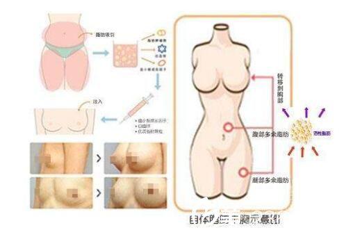 上海九院自体脂肪隆胸优势