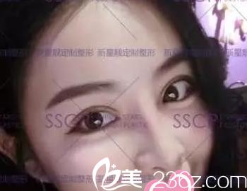 双眼皮不对称的我找北京奥斯卡医院刘风卓做了双眼皮修复后变自然了