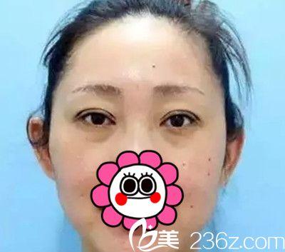 我在长春医美找史迎军院长做双眼皮手术后恢复十天全过程