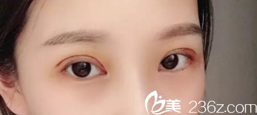 谈谈我找芜湖二院烧伤整形科庄庆元做双眼皮失败修复手术恢复过程和感受