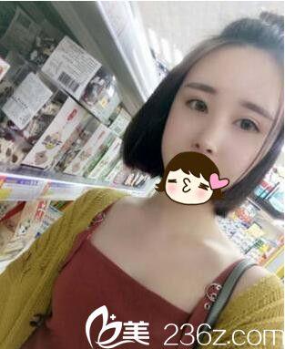去上海华美找谢卫国做的鼻综合,小土妞完美蜕变