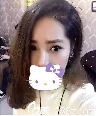 看我花两万在上海华美找谢卫国为我做的鼻综合