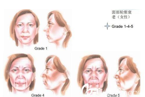 上海华美医疗美容医院刘斌讲解皮肤衰老的原因