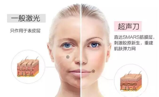 上海华美医疗美容医院刘斌讲解超声刀美容原理