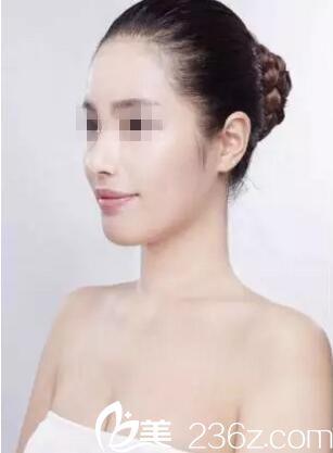 看我在恩施华美做了膨体隆鼻+耳软骨垫鼻尖+鼻翼缩小后的惊人变化
