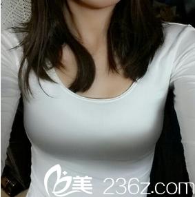 在韩国傲婷美整形医院做的假体丰胸让我拥有完美的75c,不再做acup女人图片