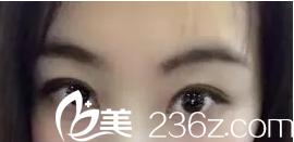 我在天津欧菲医院找梁海元做韩式双眼皮美翻了