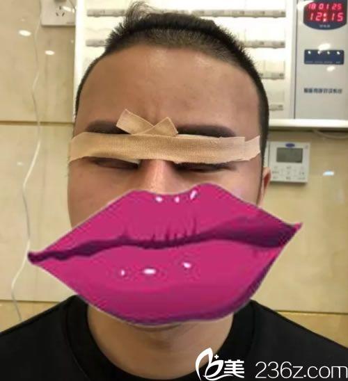 男友刚在昕薇刚做完双眼皮