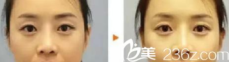 宁波尚美注射玻尿酸隆鼻案例