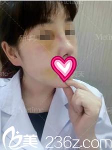 术后第四天鼻子效果