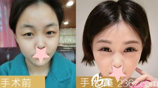 红妆韩式无痕双眼皮真人整形案例