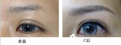 眉毛整形前后对比图