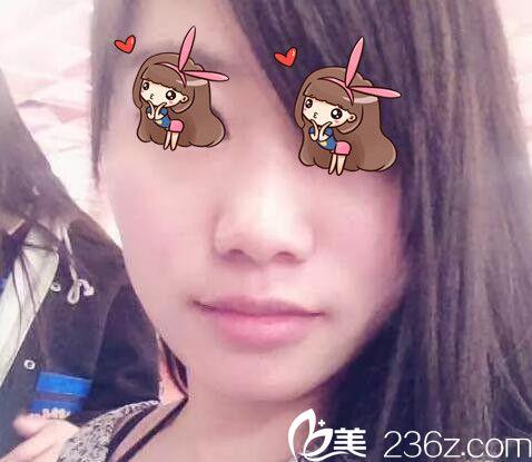 上海华美陈颖下颌角磨骨术真人案例1