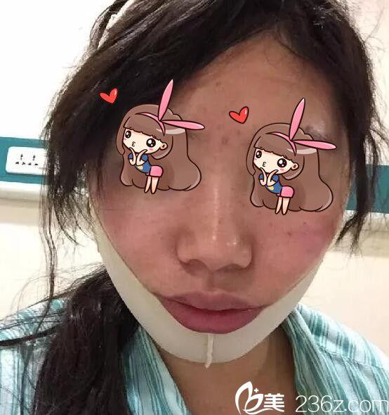 上海华美陈颖下颌角磨骨术真人案例2
