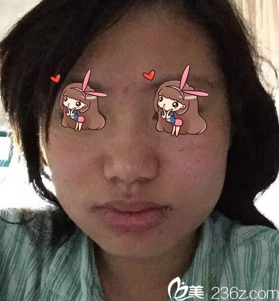 上海华美陈颖下颌角磨骨术真人案例3